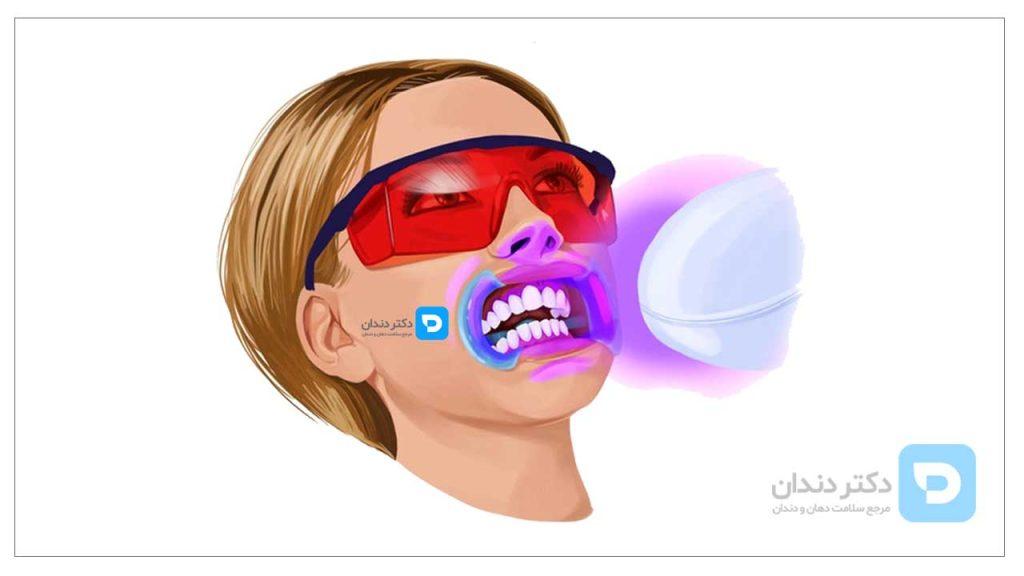 تصویر شماتیگ بلیچینپگ دندان در مطب دندان پزشک