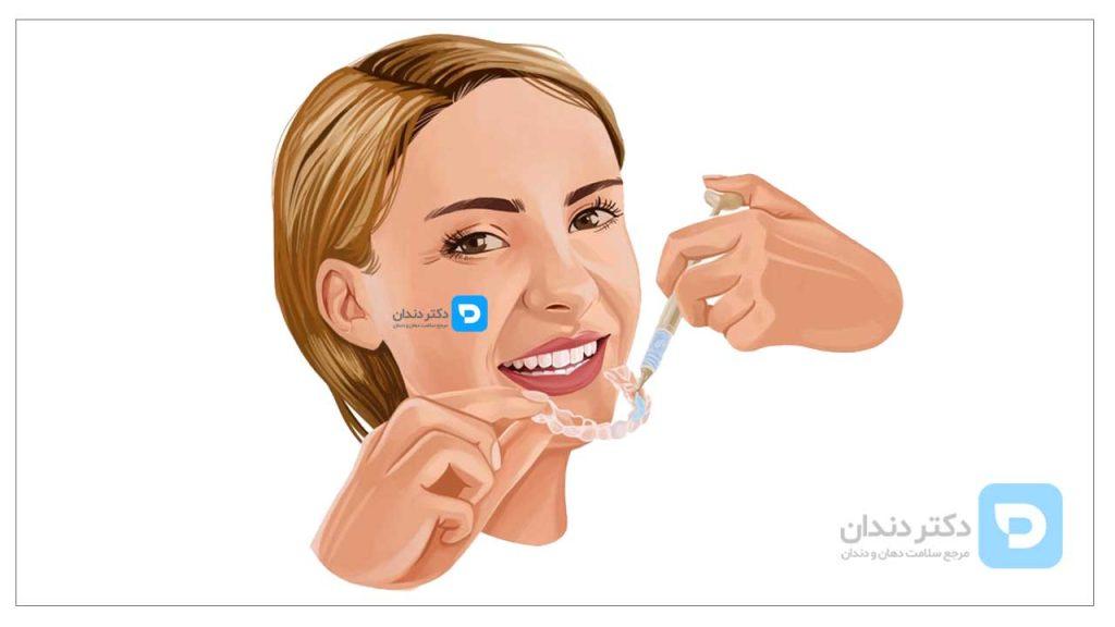 تثویر شماتیک بلیچینگ دندان در خانه با قالب های اختصاصی