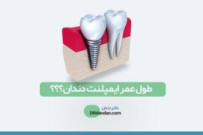 تصویر شاخص و شماتیک از ایمپلنت دندان در کنار دندان طبیعی