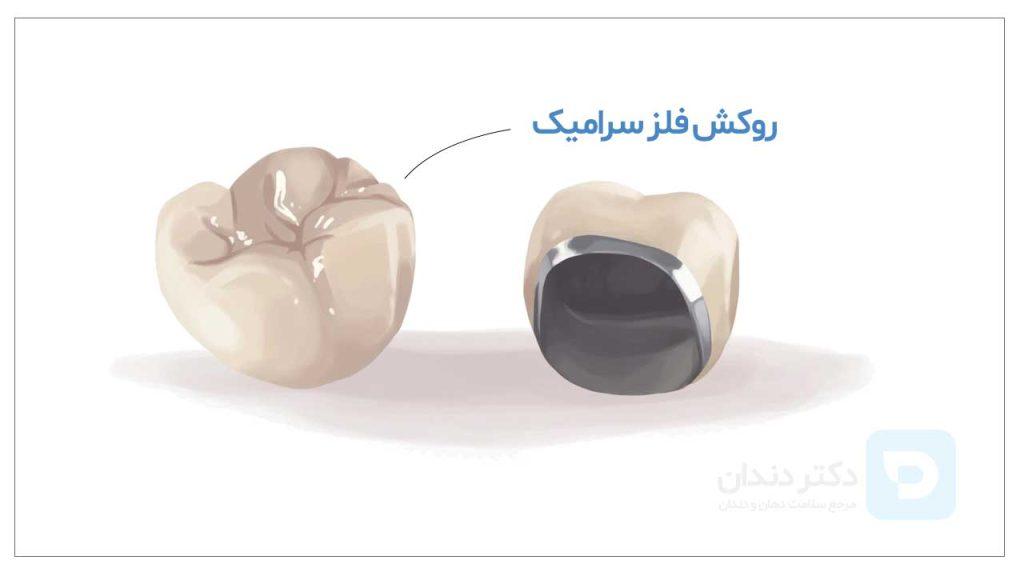 تصویر شماتیک دو عدد روکش فلز سرامیک + قیمت روکش دندان فلزی سرامیکی در سال 1400