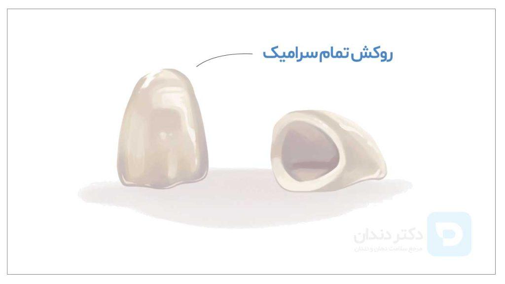 تصویر شماتیک دو عدد روکش دندان تمام سرامیک دندان همراه با قیمت روکش دندان سرامیکی