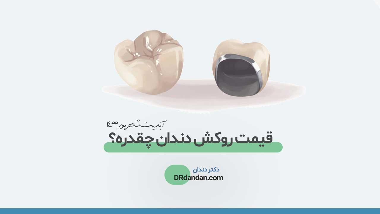 تصویر شاخص هزینه و قیمت روکش دندان در سال 1400