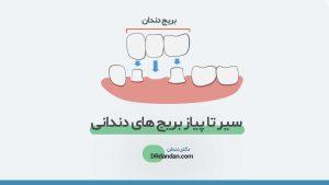تصویر شاخص بریج دندان
