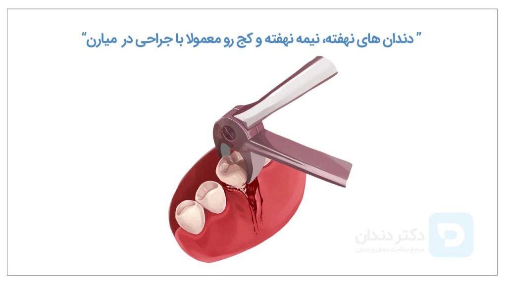 تصویر شماتیک کشیدن دندان با روش جراحی