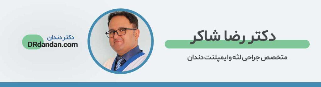 تصویر پروفایل دکتر شاکر بهترین متخصص ایمپلنت در غرب تهران